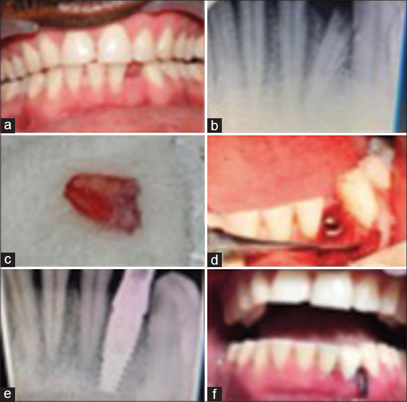 Figure 3: (a and b) Submerged root piece of mandibular left central incisor (clinical and radiographic picture). (c) Extracted root piece of the mandibular left central incisor. (d and e) Immediate implant placement in fresh extraction socket. (f) Clinical picture after temporization within 72 h